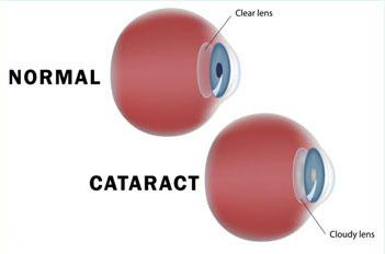 Cataracts-img